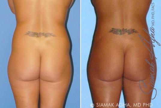 orange-county-liposuction-patient-8-back