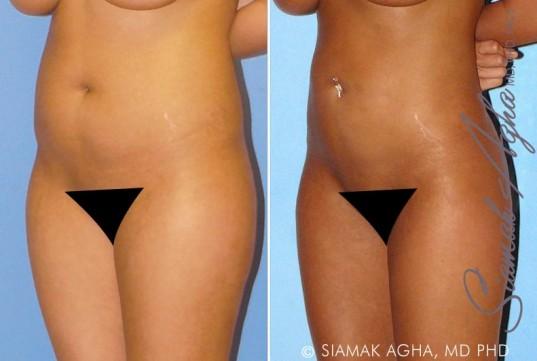 orange-county-liposuction-patient-8-front-left