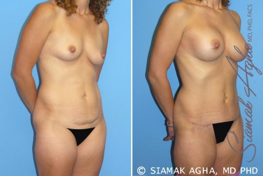 orange-county-mommy-makeover-patient-1-front-right