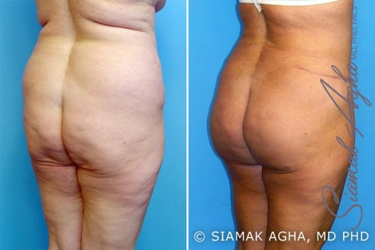orange-county-mommy-makeover-patient-10-back-right