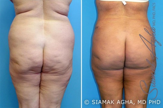 orange-county-mommy-makeover-patient-10-back