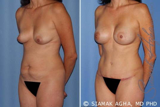 orange-county-mommy-makeover-patient-15-front-left
