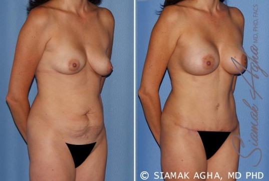 orange-county-mommy-makeover-patient-15-front-right