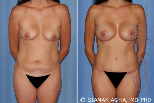 orange-county-mommy-makeover-patient-15-front