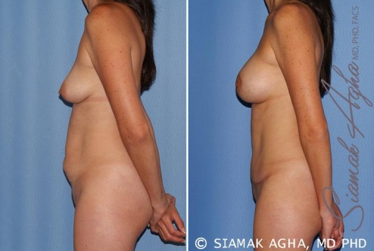 orange-county-mommy-makeover-patient-15-left