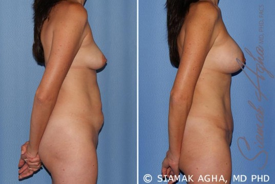orange-county-mommy-makeover-patient-15-right