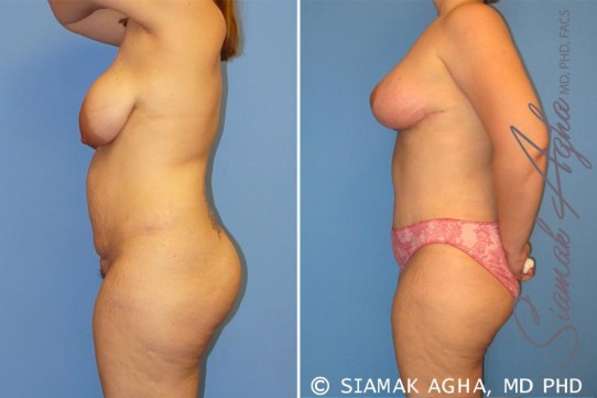 orange-county-mommy-makeover-patient-5-left