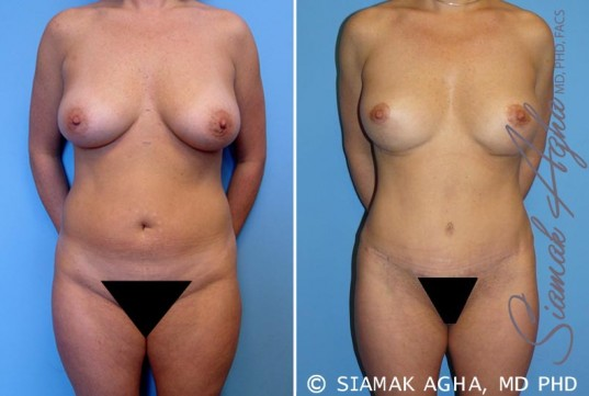 orange-county-mommy-makeover-patient-6-front