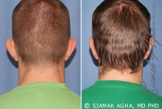 orange-county-otoplasty-patient-1-back