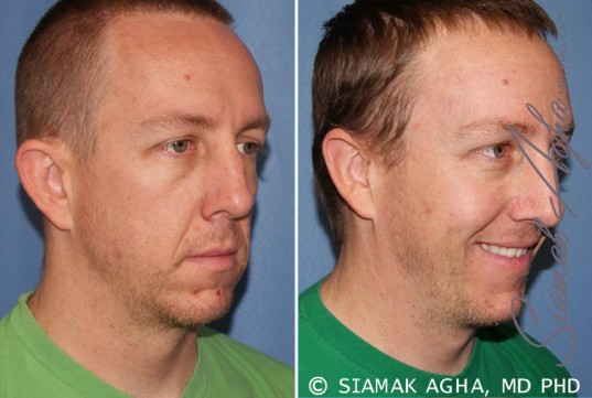 orange-county-otoplasty-patient-1-front-right