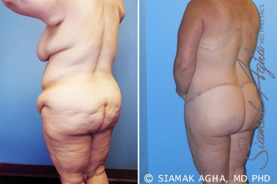 orange-county-total-body-lift-patient-13-back-left