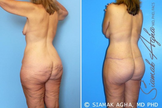 orange-county-total-body-lift-patient-14-back-left