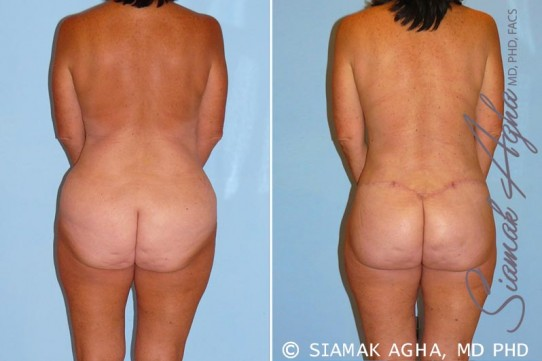 orange-county-total-body-lift-patient-15-back