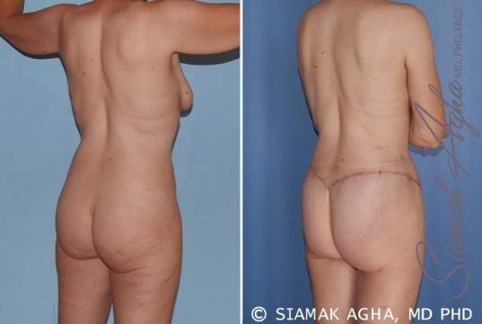 orange-county-total-body-lift-patient-17-back-right