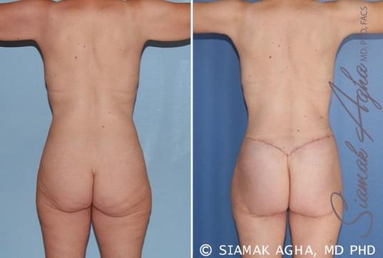 orange-county-total-body-lift-patient-17-back