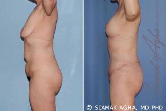 orange-county-total-body-lift-patient-17-left