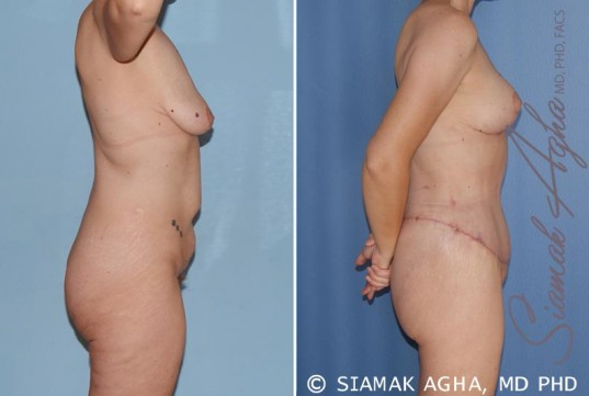 orange-county-total-body-lift-patient-17-right