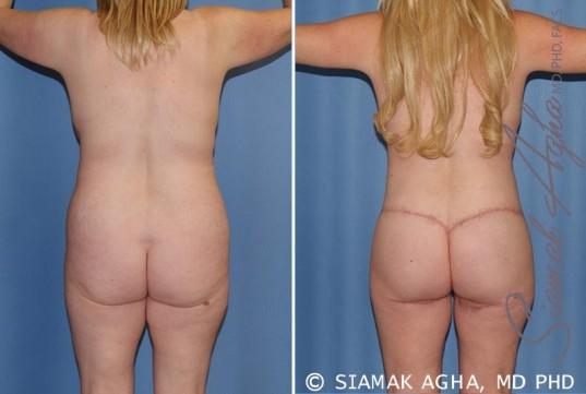 orange-county-total-body-lift-patient-18-back