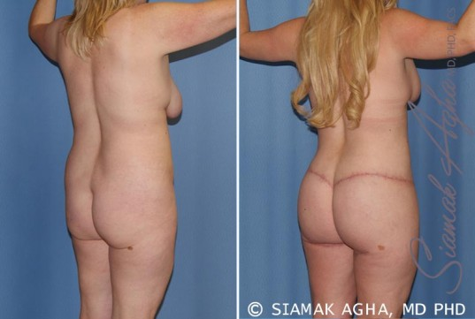 orange-county-total-body-lift-patient-18-back right