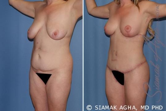 orange-county-total-body-lift-patient-18-front-left