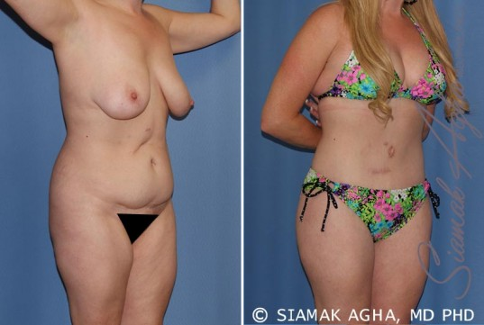 orange-county-total-body-lift-patient-18-front-right-1