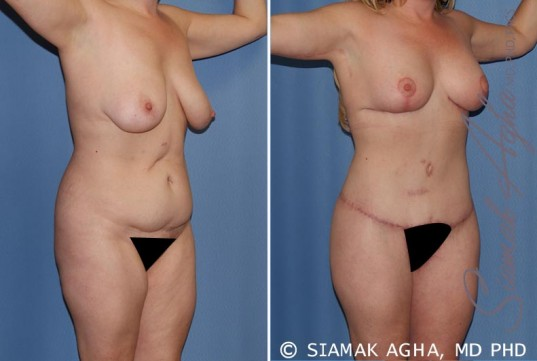 orange-county-total-body-lift-patient-18-front-right