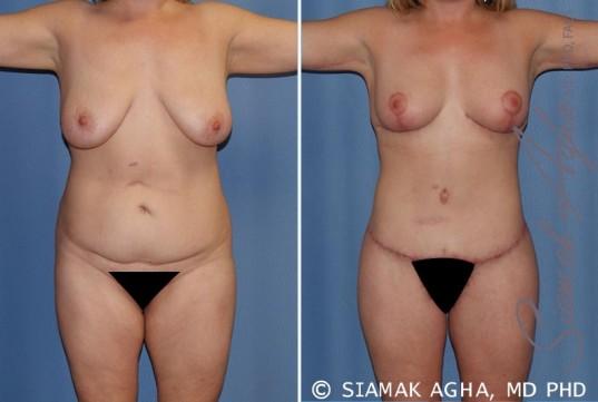 orange-county-total-body-lift-patient-18-front