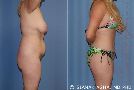 orange-county-total-body-lift-patient-18-right-1