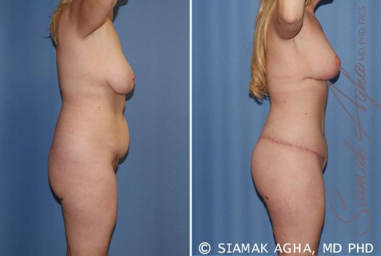 orange-county-total-body-lift-patient-18-right