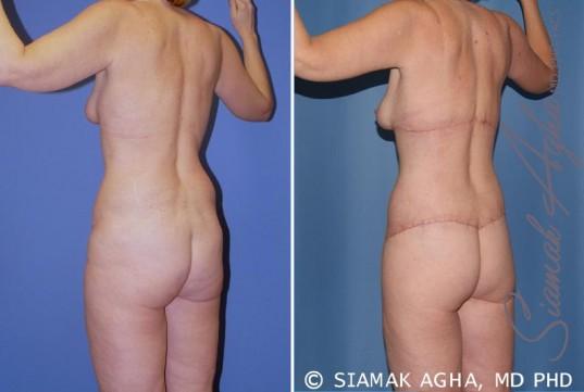 orange-county-total-body-lift-patient-19-back-left