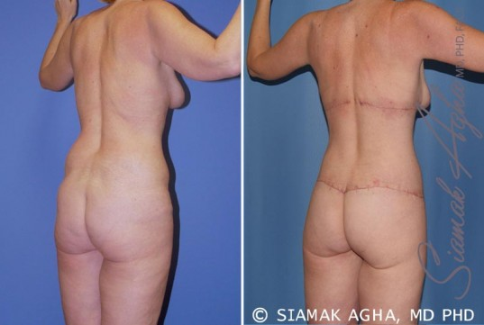 orange-county-total-body-lift-patient-19-back-right