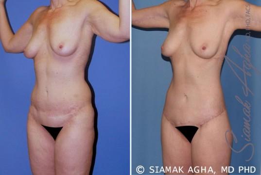 orange-county-total-body-lift-patient-19-front-left