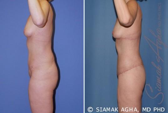 orange-county-total-body-lift-patient-19-left