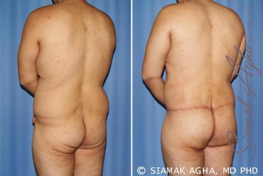 orange-county-total-body-lift-patient-24-back-left