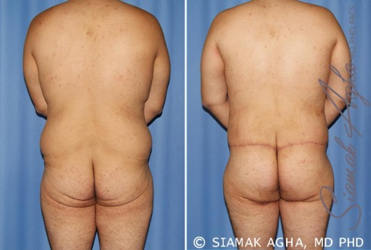 orange-county-total-body-lift-patient-24-back