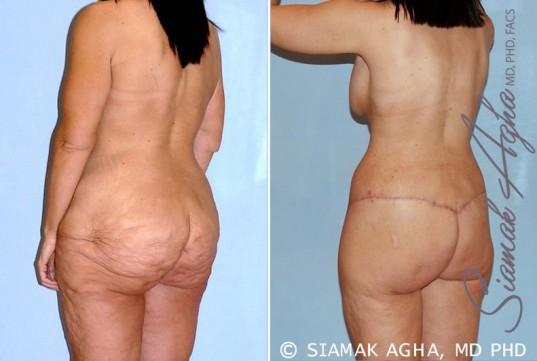 orange-county-total-body-lift-patient-26-back-left