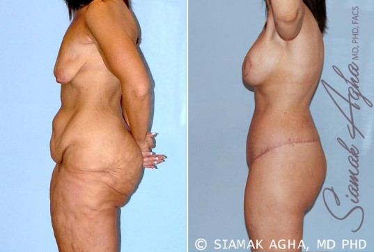 orange-county-total-body-lift-patient-26-left