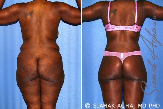 orange-county-total-body-lift-patient-27-back-1