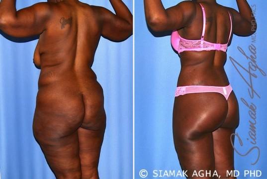 orange-county-total-body-lift-patient-27-back-left-1