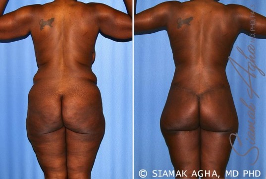orange-county-total-body-lift-patient-27-back