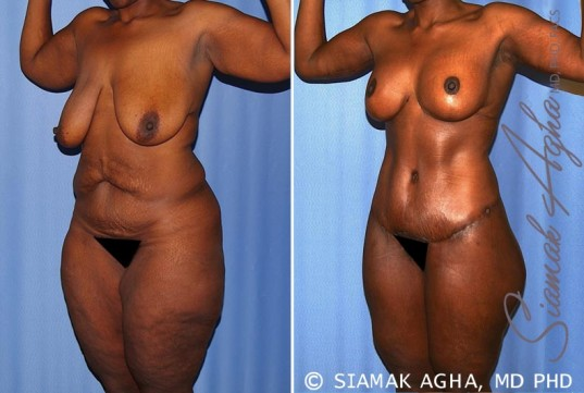 orange-county-total-body-lift-patient-27-front-left