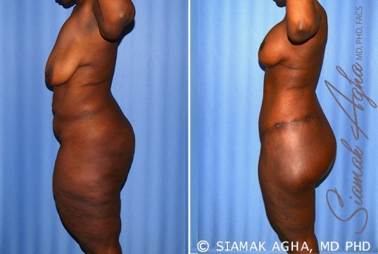orange-county-total-body-lift-patient-27-left