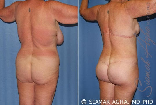 orange-county-total-body-lift-patient-28-back-right
