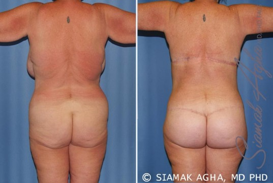 orange-county-total-body-lift-patient-28-back