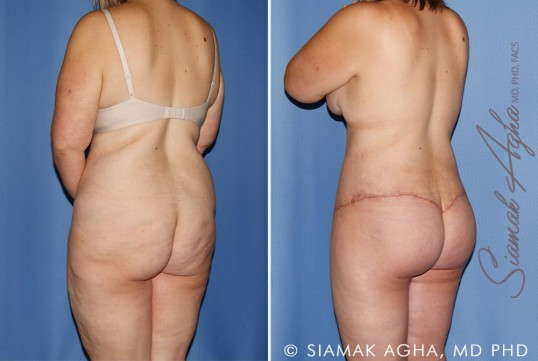 orange-county-total-body-lift-patient-30-back-left
