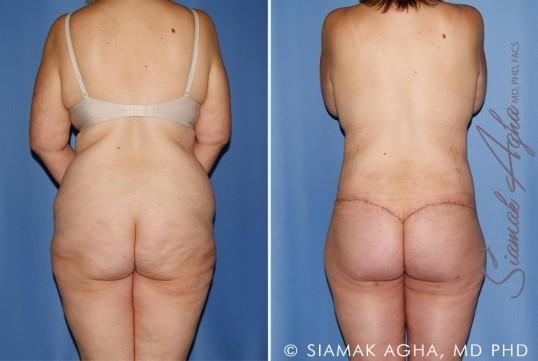 orange-county-total-body-lift-patient-30-back