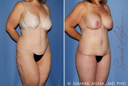 orange-county-total-body-lift-patient-30-front-right