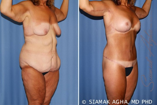 orange-county-total-body-lift-patient-31-front-right