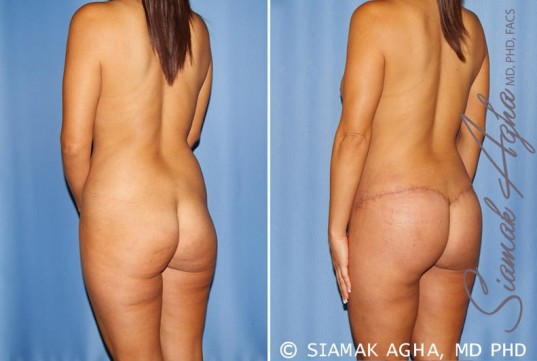 orange-county-total-body-lift-patient-32-back-left