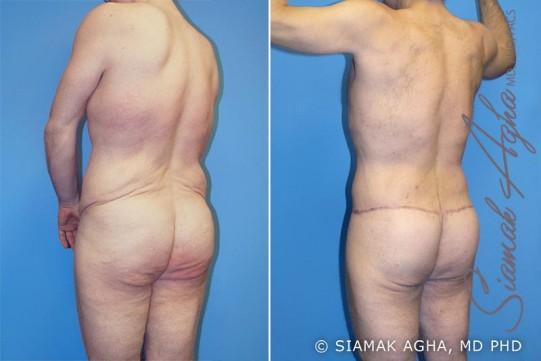 orange-county-total-body-lift-patient-5-back-left